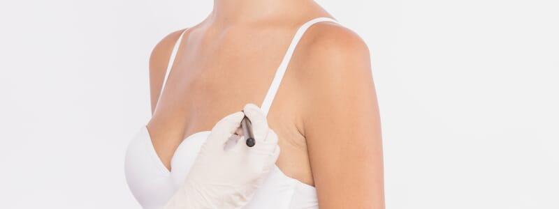 Qual é a diferença entre mastopexia e mamoplastia de aumento?