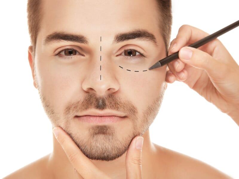 Quais são as cirurgias plásticas mais realizadas nos homens?