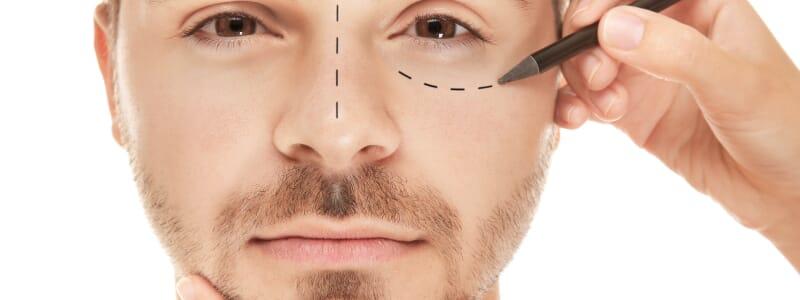 Cirurgias plásticas nos homens: quais são as mais realizadas?